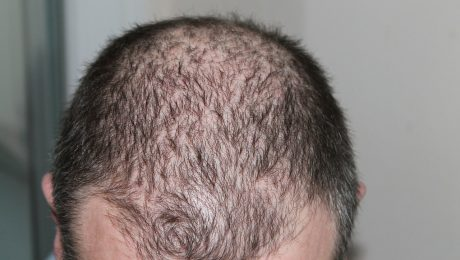 hair regrowth system